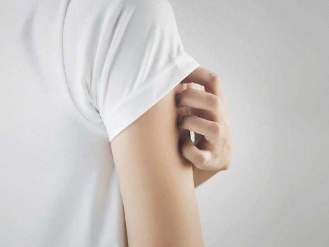 اختلال پوست کندن (skin-picking)Disorder Excoriation